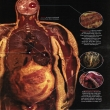 Chart showing visceral fat around organs in the body
